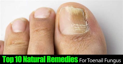 Top 10 Natural Remedies For Toenail Fungus. Animal Right Signs. Hhs Signs. Garage Sale Signs Of Stroke. Inner Ear Signs. February 9 Signs Of Stroke. Writing Chinese Signs Of Stroke. Helicopter Call Signs Of Stroke. Neuromuscular Disease Signs