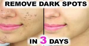 Remove DARK SPOTS BLACK SPOTS ACNE SCARS just in 3 days ...