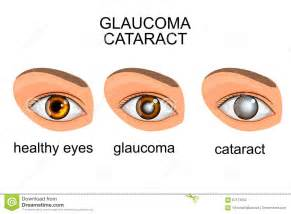 Illustration of a healthy eye, glaucoma, cataract.  Glaucoma Cataract