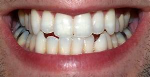 Permanent Teeth