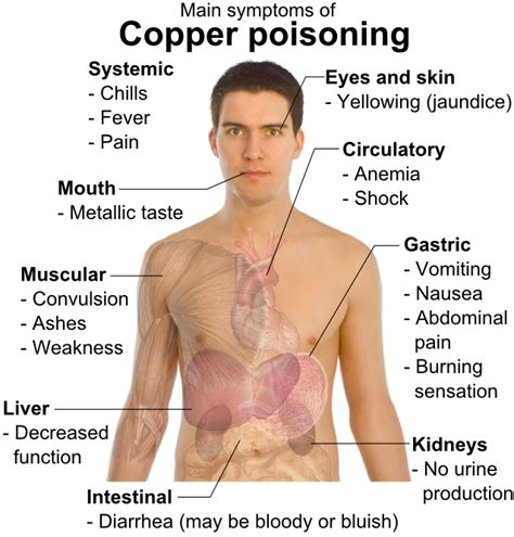 copper poisoning  symptoms treatment copper poisoning