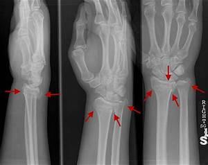 Ulna Wrist Fracture