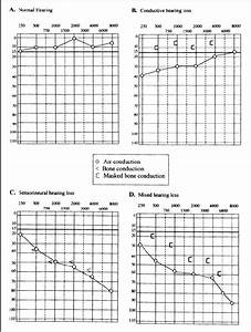 Examples Of A Normal Audiogram  A  And Each Of The Three