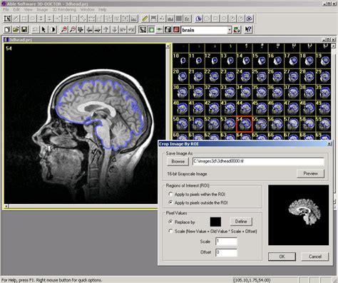doctor medical modeling  medical imaging release notes