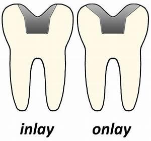 Why You May Need a Dental Inlay or Dental Onlay