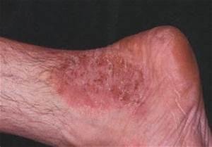 Как самому удалить ноготь с грибком