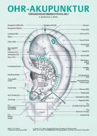 Tcm, abnehmen mit, akupunktur von Sinovital