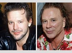 50 Shocking Photos of Celebrities Before and After Plastic