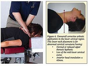 Chiropractic Treatment of Lordosis | Denneroll Combined ...
