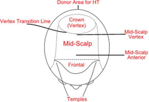 hair loss front of head frontal hair loss in men