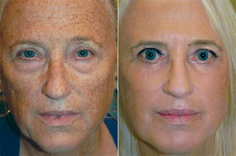 blue light treatment for sun damage reset skin resurfacing adam scheiner md