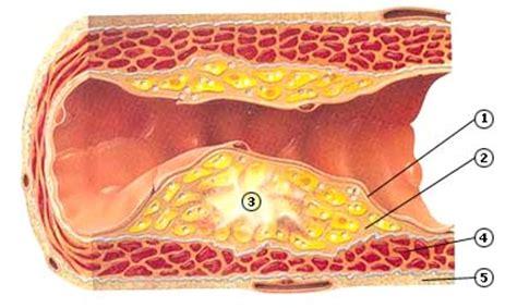 Statines cholesterol
