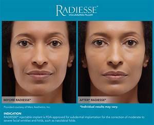 Radiesse Before After Serenity MedSpa