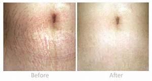 Dermaroller Skin Rejuvenation Treatment Clinic