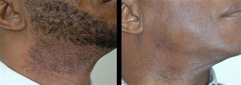 laser hair removal indianapolis reviews