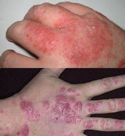 psoriasis vs eczema - DriverLayer Search Engine