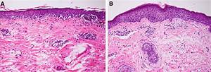 A  Skin Biopsy Histology Before Treatment Shows Melanoma