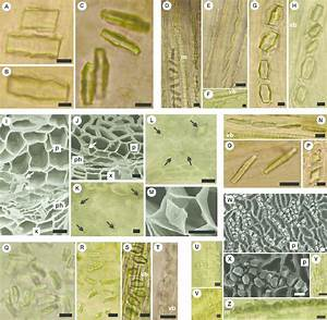 Prismatic Calcium Oxalate Crystals In Vegetative And