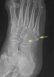 Avulsion of the Fifth Proximal Metatarsal (X-Ray of Foot ...