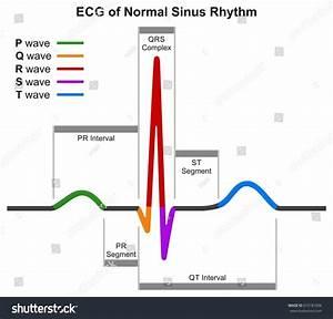 Ecg Normal Sinus Rhythm Infographic Diagram Stock Illustration 672181006