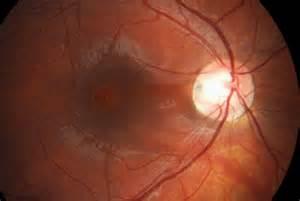 ... with sub retinal fluid - Northern Sydney Cataract - Retina - Glaucoma  Glaucoma Cataract