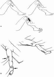 Мазь для лечения бурсита локтевого сустава