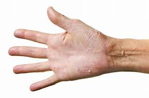 New study shows hand eczema is more common among ...