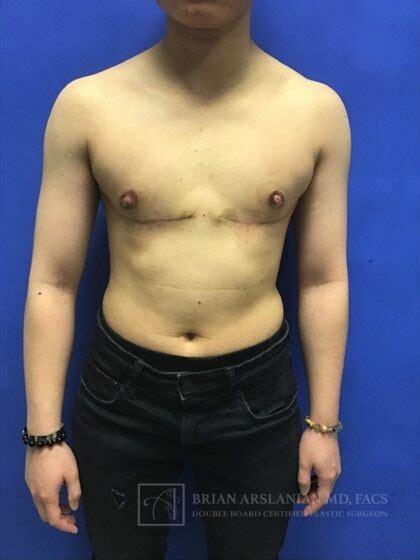 patient  female  male top surgery
