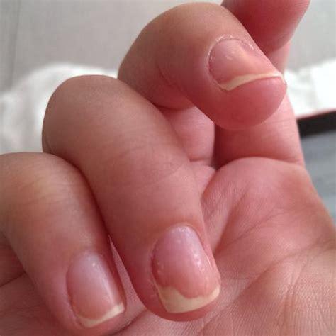 hautveraenderungen besonders  nagel nagelplatt loest sich