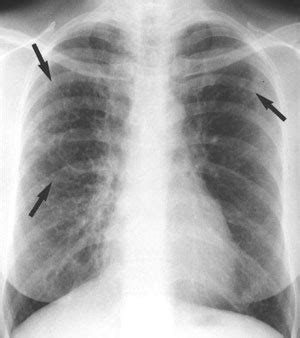 Chest Infection Causes, Symptoms, Treatment Chest Infection. Masters In Marketing Chicago. Twitter Hashtag Analytics Asi Auto Insurance. Computer And Networking Services. Lupron Prostate Cancer How To Program Car Key. Cyklop Packaging Systems Online Masters In It. Lincoln City Culinary Center. Car Dealers In Merced Ca Organic Cancer Cures. Role Of Financial Planning Optimal Tax Relief