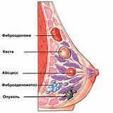 Препарат для лечения рака печени