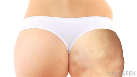 lpg cellulite treatment
