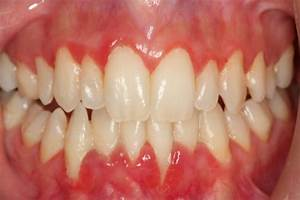 The gallery for --> Mild Gingivitis