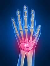 Болят суставы на руках кто лечит