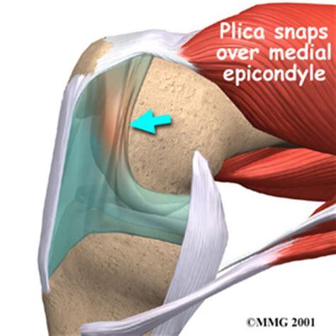 Knee (Synovial) Plica