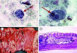 Entamoeba Histolytica In Stool And Pathological Features