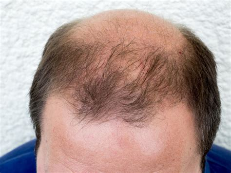DHT (dihydrotestosterone): What is DHT's role in baldness?