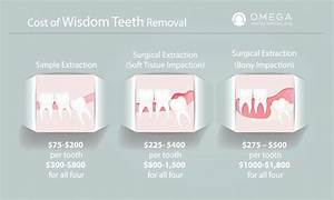 The Average Cost Of Wisdom Tooth Removal