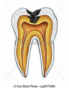 Banco de Ilustrações de cavidade, dente - dente, cavites ...