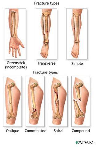 fractures  extremity nursing crib
