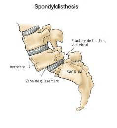 Spondylolisthesis Lumbar Spine Exercises