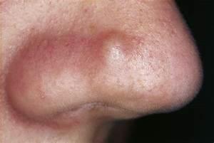 Onderhuidse ontsteking in gezicht