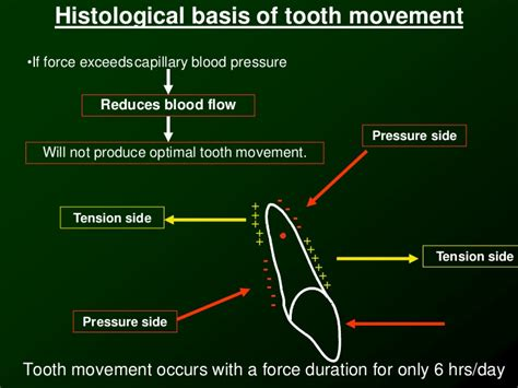Tooth Movement Diagram by Biomechanics Of Orthodontic Tooth Movement 2 Dr Nabil