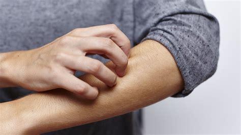 chronischen juckreiz behandeln ndrde ratgeber