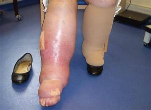 5 Things Every Gp Should Know About Lymphoedema