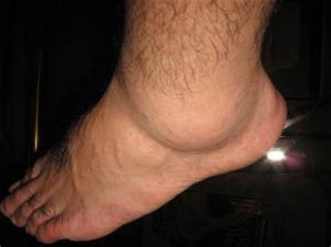 leg swelling  general center steadyhealthcom