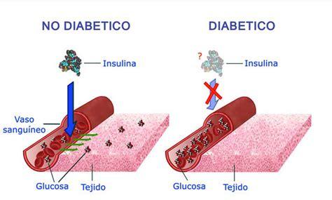 In Diabetes Mellitus Diabetes Mellitusdiabetes